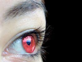 Come correggere gli occhi rossi nelle foto